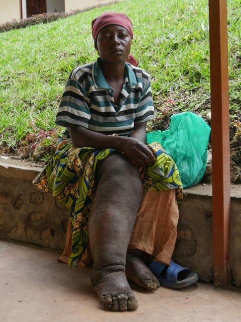 Elephantiasis patient Fatuma Kabilambali